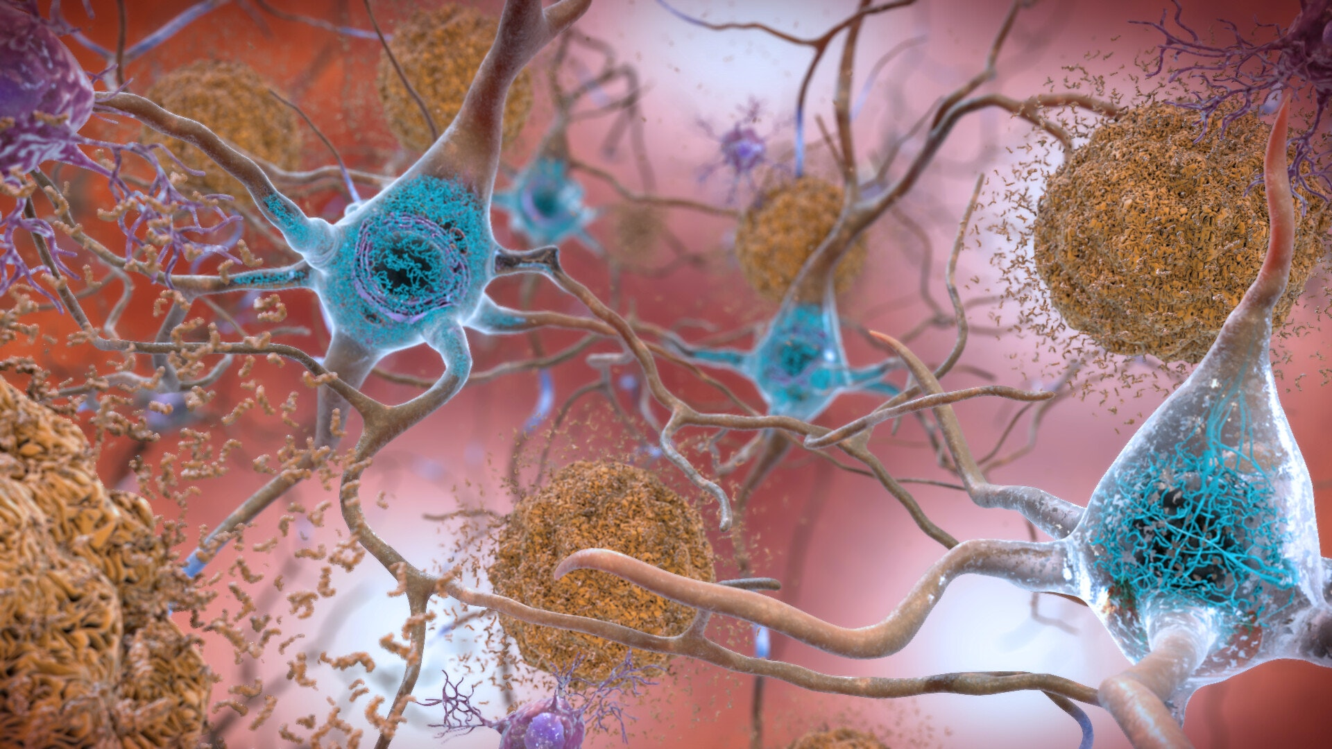 An illustration of beta amyloid and tau proteins among neurons in the brain.